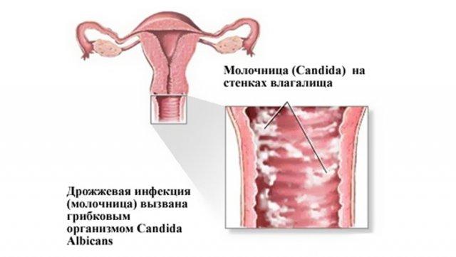 При молочнице после секса опухают