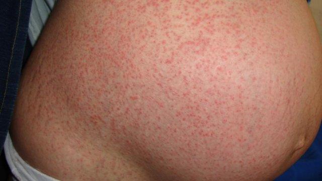 аллергия нос форум