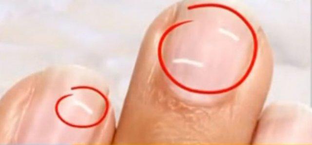 белые пятна на ногтях 10 лет