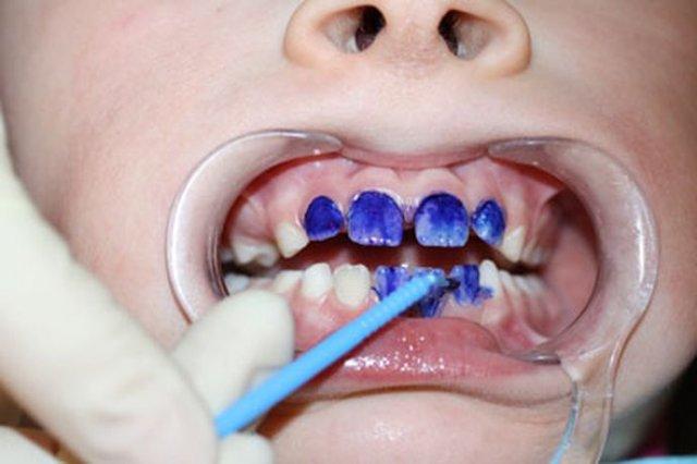 ознакомится сайтами можно ли очистить зубы после серебрения постарался