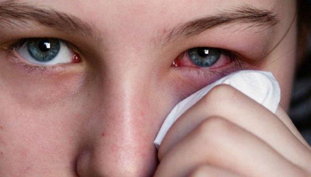 Коньюктивит как самое распространенное заболевание глаз