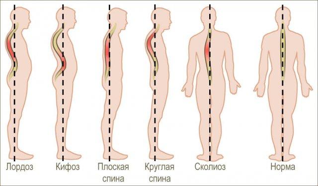 Сколиоз— каковы причины иметоды лечения этого дефекта осанки?